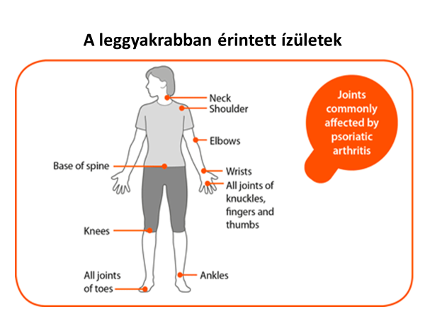 A pikkelysmr otthoni kezelse | Sanidex Magyarországon