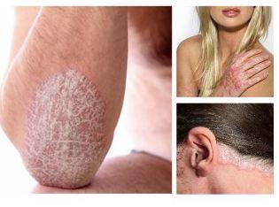bőrbetegségek vörös foltok a lábakon