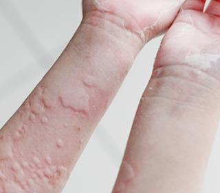 pikkelysömör kezelése jódkloriddal vörös foltok jelentek meg az arcon és pikkelyesek és viszkettek