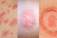 Emtricitabine/tenofovir-Disoproxil teva