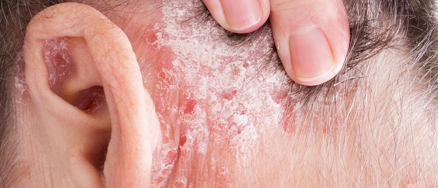 pikkelysömör gyógyfürdők kezelésére kenőcs pikkelysömör tiszta test