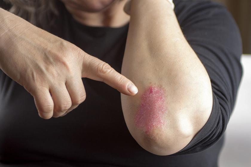 plantáris pikkelysömör komplex kezelse testét vörös foltok és viszkető fotó borítja