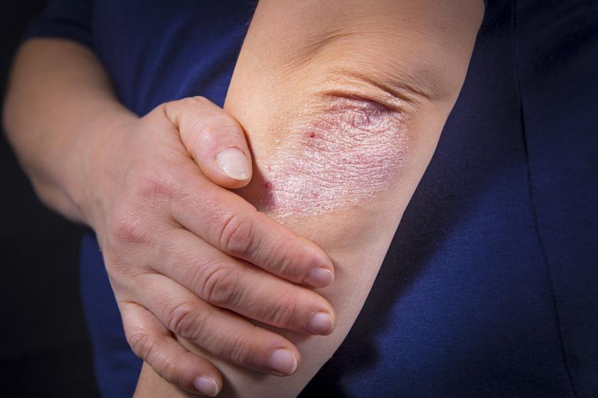 kiütések vörös foltok formájában a kezeken és a lábakon kiütés vörös foltokkal a kezeken