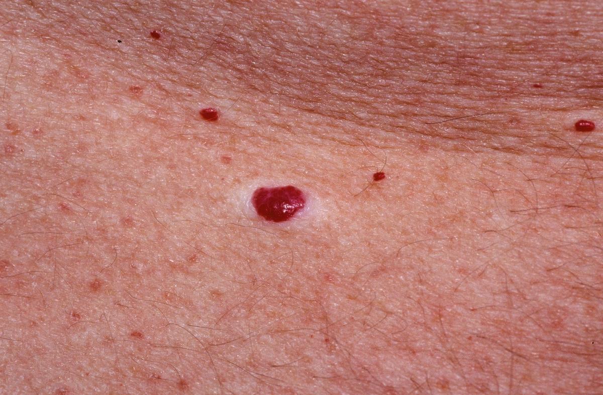 piros folt jelent meg a bőrön fáj tenyerén vörös foltok viszkető fotó