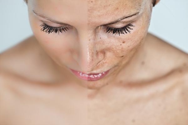 vörös foltok az arcon a kozmetikumoktól pikkelysömör és kezelésének módszerei