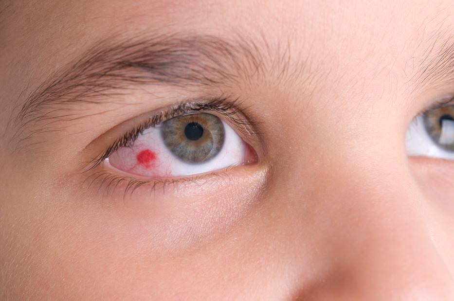 Gyakran bevérzik a szeme? Ezek okozhatják | BENU Gyógyszertárak
