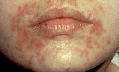 homeopátia a pikkelysömör és a seborrheás dermatitis kezelésében