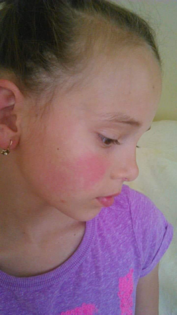 cseppek az arcon lévő vörös foltokból fájdalmas vörös folt jelent meg az arcon