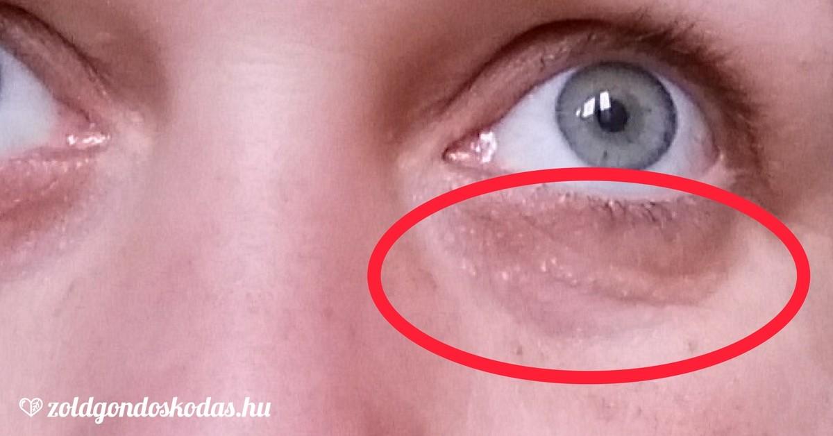 vörös foltok a szem alatt, hogyan lehet eltávolítani
