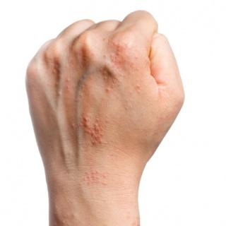 transfer live egészséges pikkelysömör kezelés vörös gyulladt foltok a bőrön okozzák