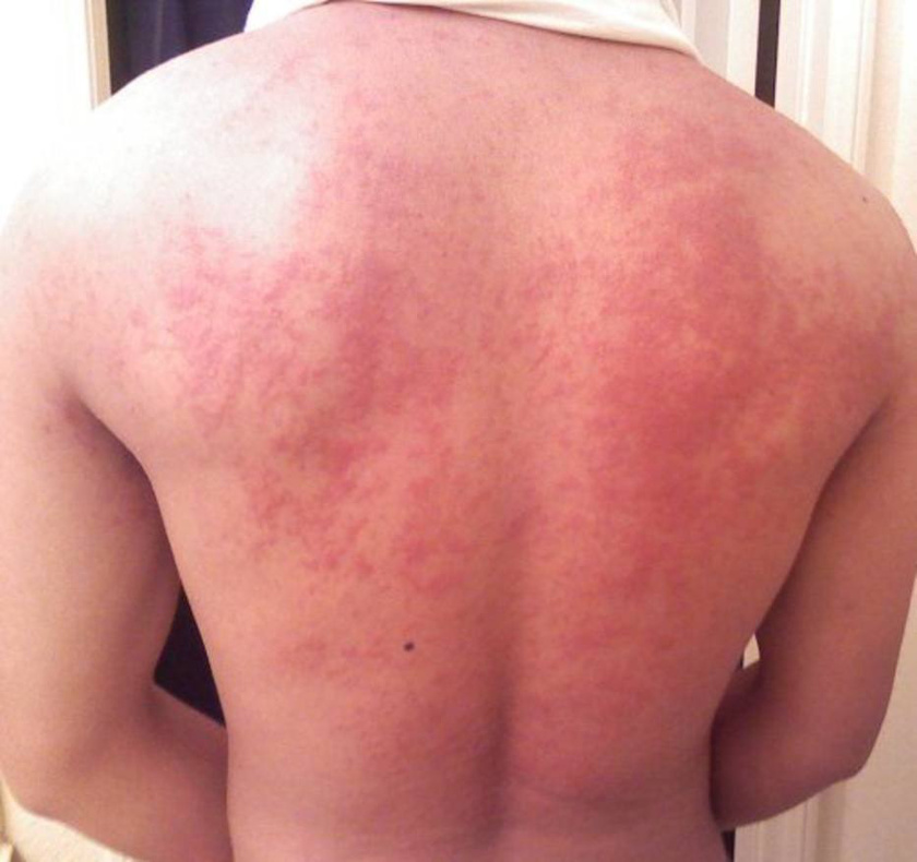 vörös felemelt foltok a bőrön pikkelysömör kezelése ural