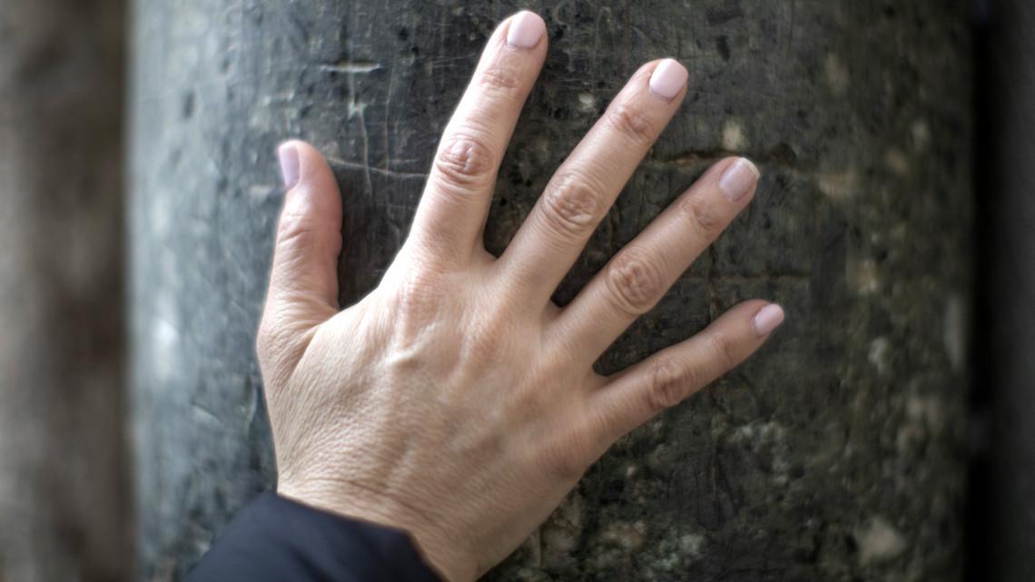 piros foltok a bőr alatt a kezek fotó