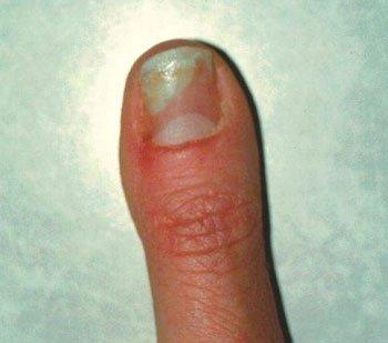 Milyen a bőröd? Ezekre az emésztési problémákra utal!, A kezén vörös domború folt hámlik