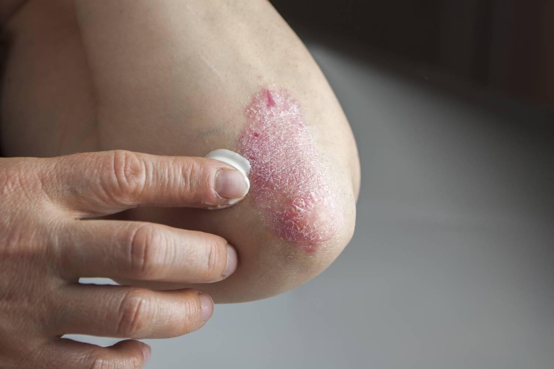 a lábakon lévő foltok vörösek pikkelysömör kezelése UV sugarakkal