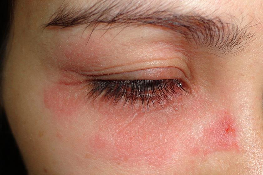 pikkelyes vörös folt a szem alatt
