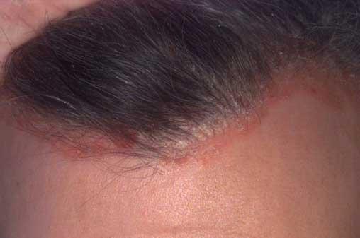 hogyan kell kezelni a pikkelysömör a térdén vörös foltok hámlanak az arcon és a testen