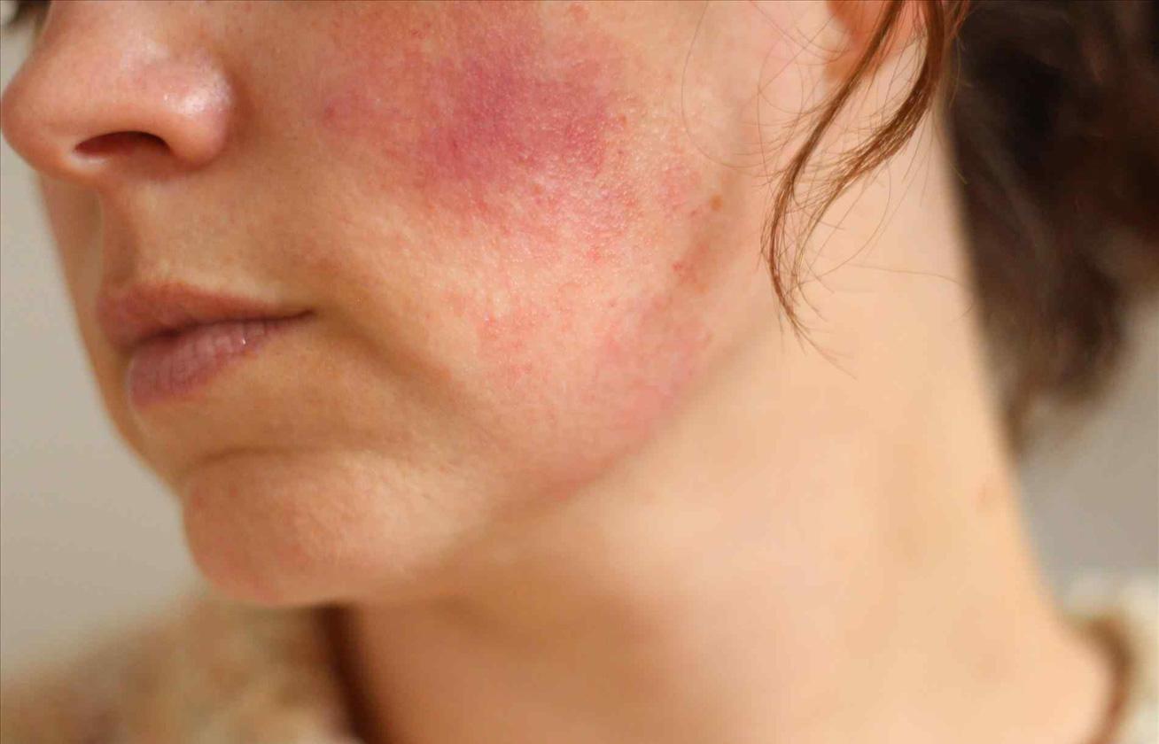 vörös foltok az arcon a keveréktől vörös száraz foltok jelentek meg az arcon