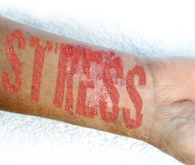 henna pikkelysömör kezelésére ízületi kezelés pikkelysömörhöz