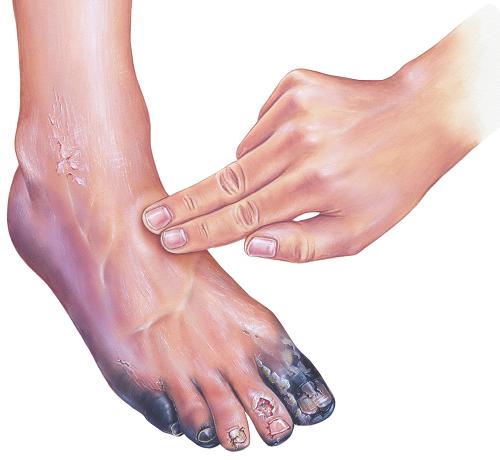 foltok a lábakon vörös cukorbetegség