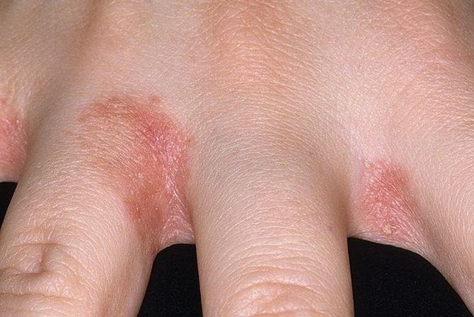 száraz vörös foltok az ujjak között Holt-tengeri vz pikkelysmr kezels