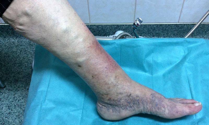 duzzadt vörös folt a lábán)