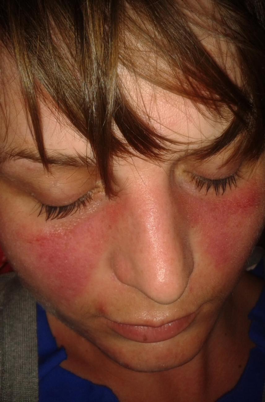 pelyhes vörös foltok az arc bőrén