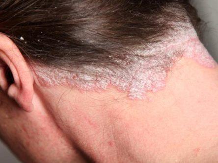 cactus epiphyllum pikkelysömör kezelése a bőrön lévő foltok a széle körül vörösek