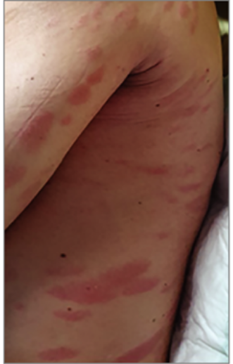 A lábon megjelenő foltok előre jelezhetik a koronavírust – állítják kutatók