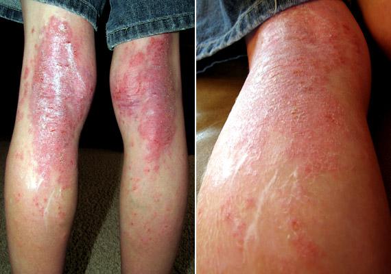 száraz dermatitis pikkelysömör kezelése lehetséges-e eltávolítani egy piros anyajegyet?