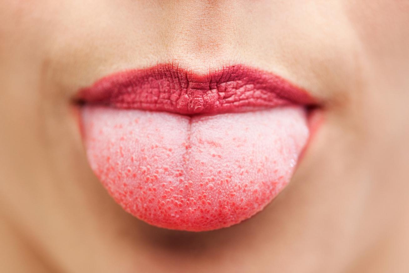 a nyelven vörös foltok kezelése fotó