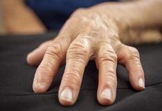 svatik pikkelysömör kezelése vörös foltú száraz folt a bőrön