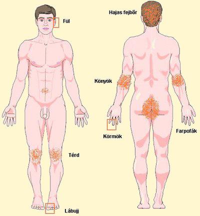 psoriasis hatékony kezelése