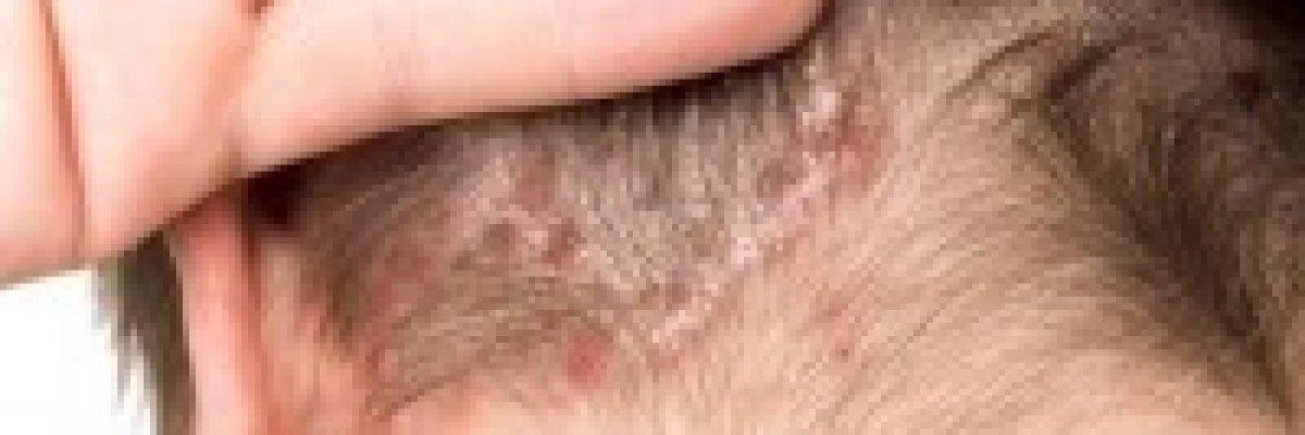 vörös foltok a fejbőrön okoznak