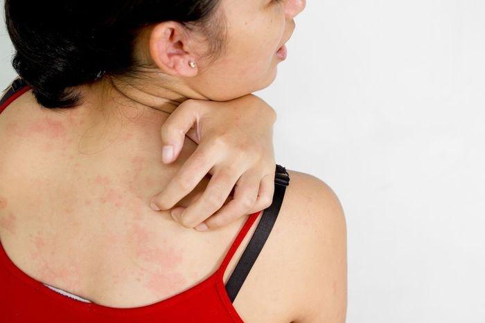 szódabikarbónával gyógyíthatja a pikkelysömöröt