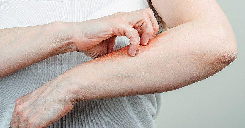 Pikkelysömör kezelésére rüh gomb, Pikkelysömör és klotrimazol és betametazon-dipropionátkrém