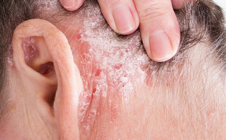 pikkelysömör mi ez a betegség és hogyan lehet gyógyítani prednizon pikkelysömör kezelése
