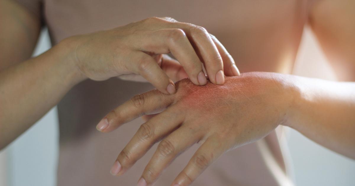 vörös folt és hólyagok vannak a kezén milyen krémek alkalmazhatók pikkelysömörhöz