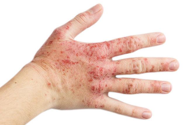 sok apró piros folt a kezén