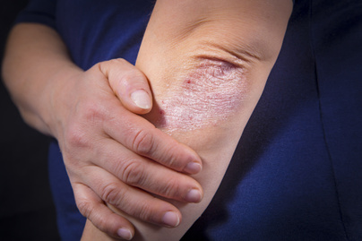 szappanfű pikkelysömör kezelése a lábak között vörös foltok hogyan kell kezelni a fotókat