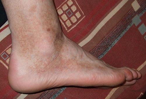 vörös foltok jelentek meg a lábak végtagjain