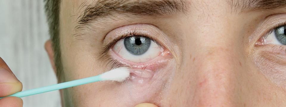 Szemhéjgyulladás | BENU Gyógyszertárak