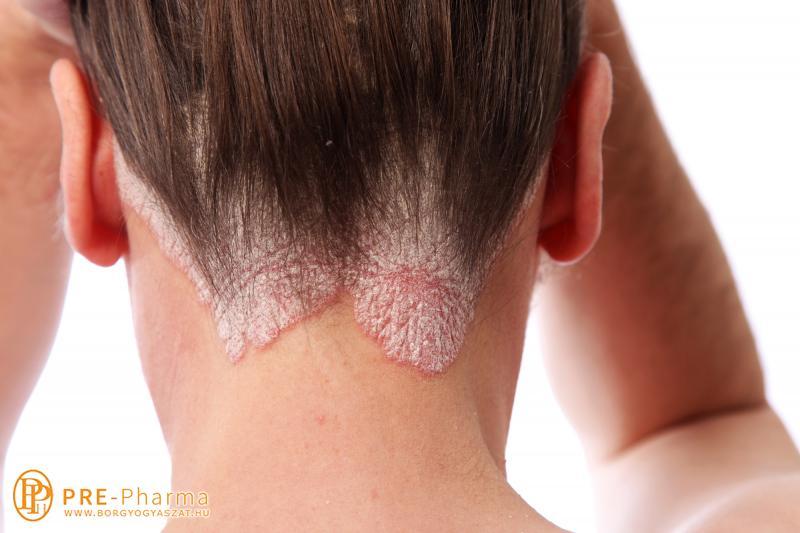glutoximmal kezelt pikkelysömör vörös foltok egymás után a bőrön