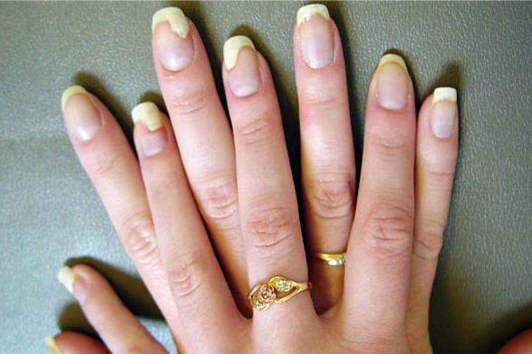 homeopátia pikkelysömör kezelés vélemények nagy vörös foltok a kezeken és a lábakon