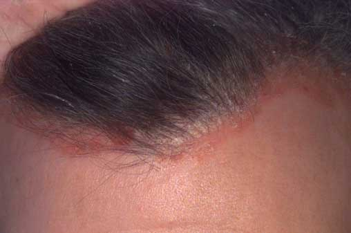 A korpás fejbőr kezelése - Bőrproblémák: pikkelysömör, ekcéma, korpa kezelése