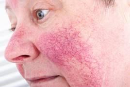 cseppek az arcon lévő vörös foltokból hogyan kell kezelni a pikkelysömör otthon a térdén