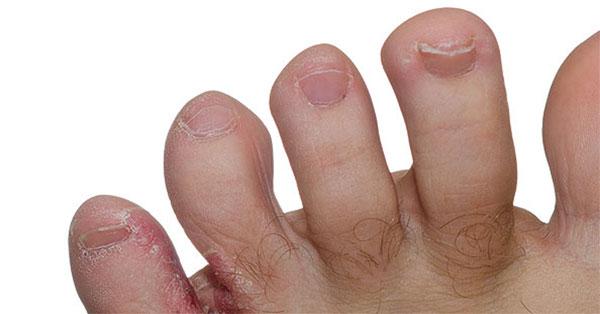 vörös száraz foltok az ujjak között