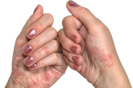 mi a teendő, ha piros foltok vannak a kezeden kenőcs pikkelysömör után