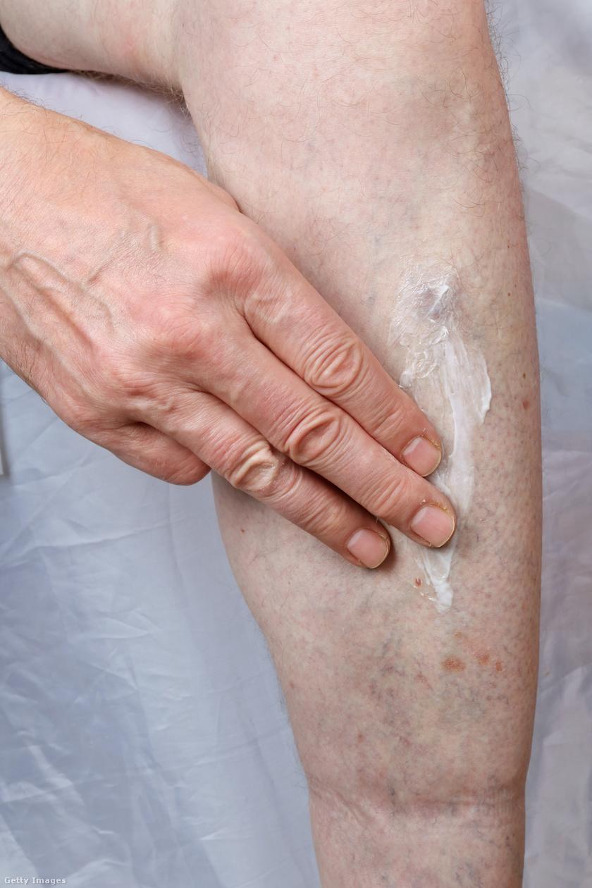 viszkető lábak és vörös foltok jelennek meg a bőrön vörös folt, például vakond