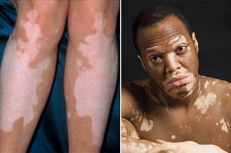 Mi legyen, ha leégett? – Gyógyír a vörös bőrre