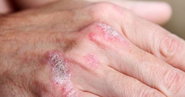 lenmagolaj kezelése pikkelysömörhöz vörös folt jelent meg a térd viszketésén